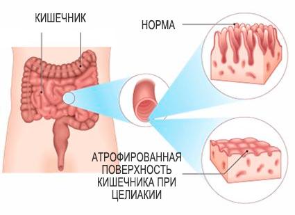 Атрофированная поверхность кишечника при целиакии
